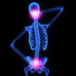 Chiropractic Care Benefits - Relieve Neck and Hip Pain